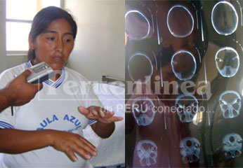 Madre del pequeño Rubi Quispe y radiografías