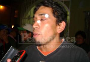 Jonathan Chileno resultó herido por roce de bala en el rostro y fue golpeado por la gente de seguridad del Grupo Wong.