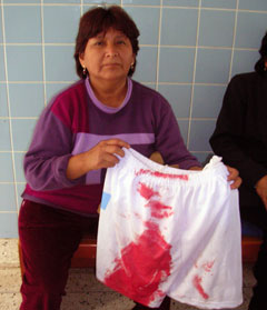 Madre del herido, mostrando la ropa ensangretada.