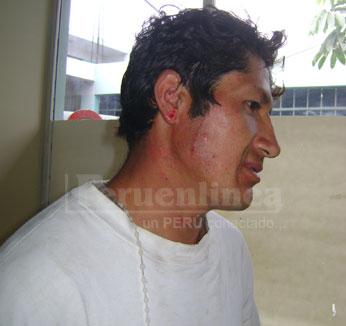 Humberto Espada agredido por su esposa.