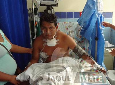 policia dispara en el pecho a ciudadano y se salva de milagro-huaralenlinea